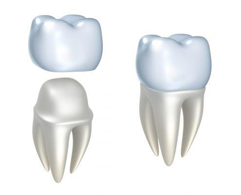 kronen tandarts